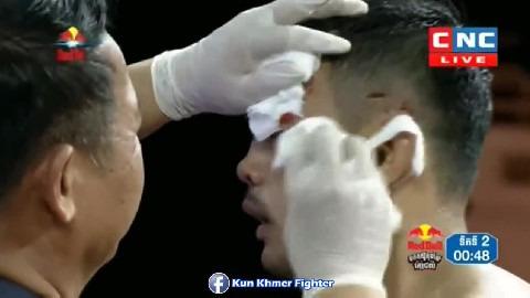 ផល សោភ័ណ្ឌ វាយថៃទក់សាច់ Phal Sophorn vs Keokangvan(thai) CNC Kun Khmer 30032019